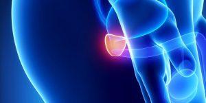 Простатит: первые симптомы и признаки, лечение на начальной стадии