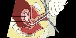 Осложнения аборта: виды абортов и их возможные последствия