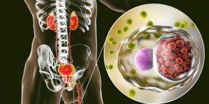Что такое уретрит у мужчин: симптомы и лечение
